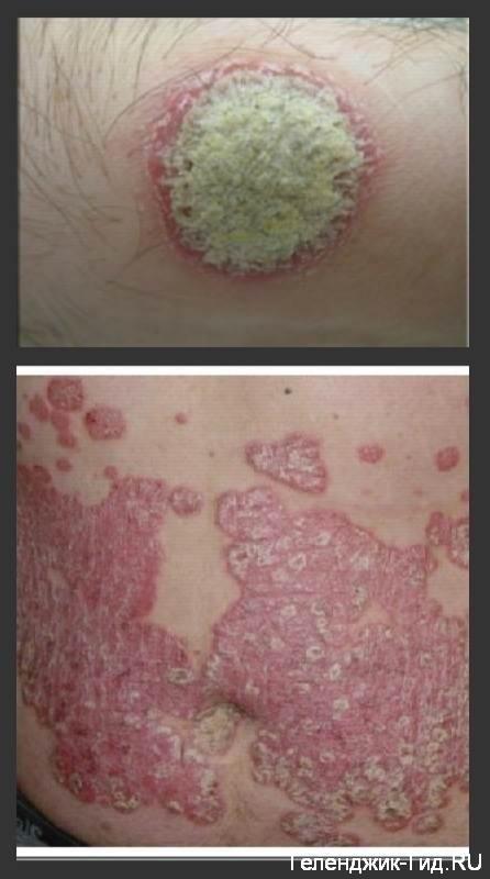 Лечение псориаза в Геленджике